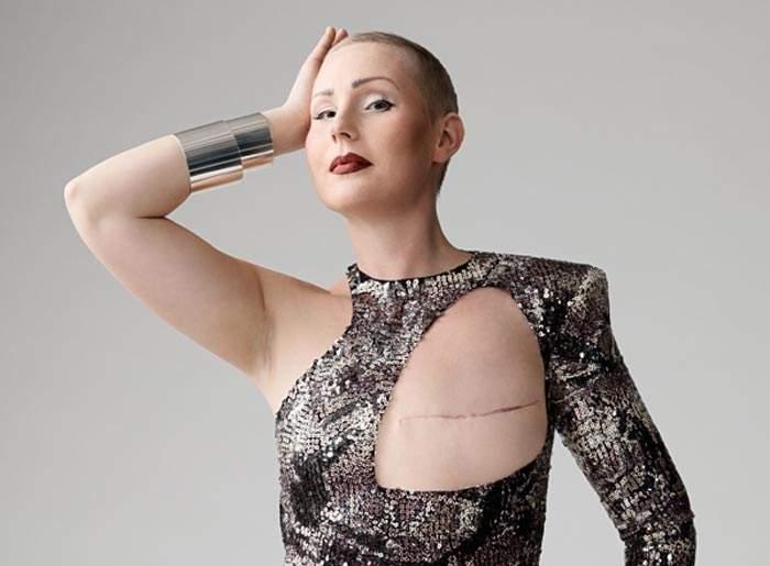 ¿Quién dijo que necesitas dos pechos para estar guapa? Cómo la moda naturaliza el cáncer de mama 2