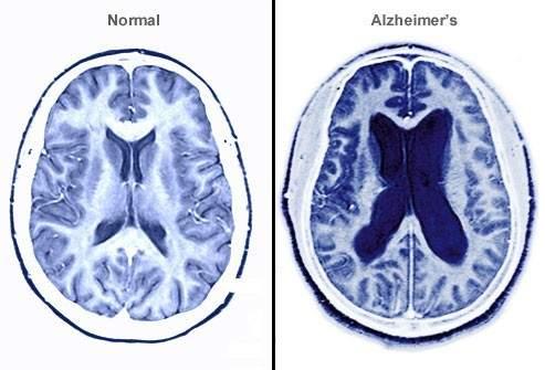 Diferencia entre un cerebro normal y uno con Alzheimer