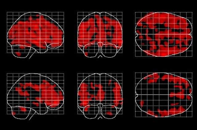Las áreas del cerebro afectadas por el envejecimiento (en rojo) son menos extensas en las personas que meditan (las de la fila inferior). Imagen: Eileen Luders. Fuente: UCLA.