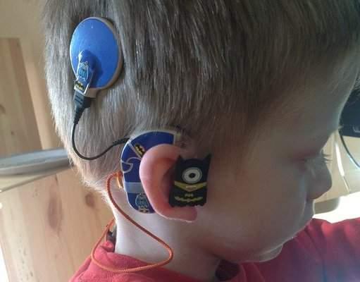 Una mamá inventa divertidos audífonos para su hijo sordo 2