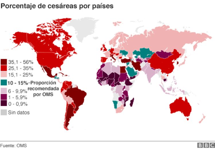"""Hay una """"epidemia"""" en tu país: ¿a qué se debe el fenómeno de las cesáreas innecesarias? 2"""