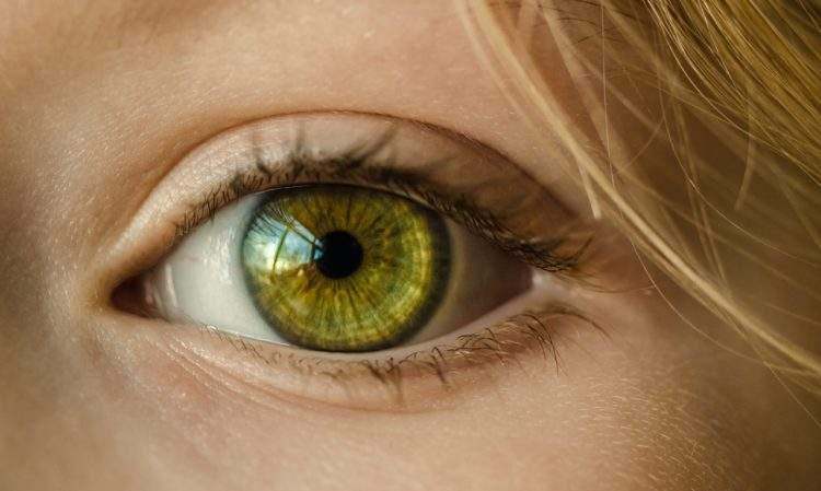 Solo El 2 Tiene Los Ojos Verdes Y 3 Cualidades Unicas