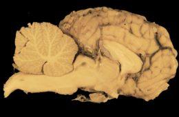 Cerebros cultivados en un laboratorio han comenzado a brotar sus propios vasos sanguíneos 4