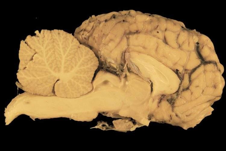 Cerebros cultivados en un laboratorio han comenzado a brotar sus propios vasos sanguíneos 2