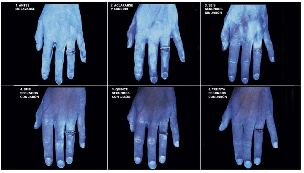 El médico húngaro al que metieron en un manicomio por descubrir la importancia de lavarse las manos 4