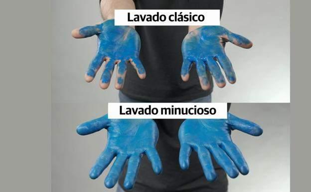 El médico húngaro al que metieron en un manicomio por descubrir la importancia de lavarse las manos 1